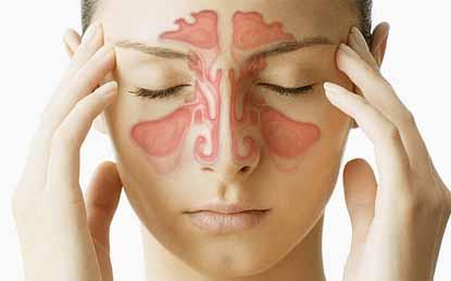 Polyp mũi cũng là tác nhân gây nguy hiểm