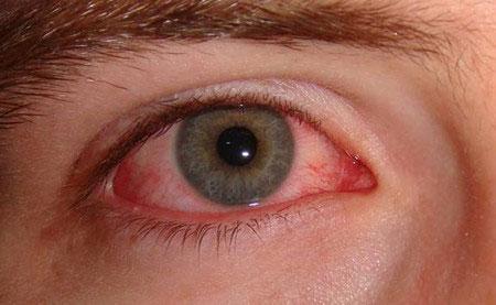 Vì sao viêm xoang có thể gây mù mắt?