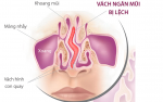 Vừa viêm mũi dị ứng, vừa lệch vách ngăn thì chữa ra sao?